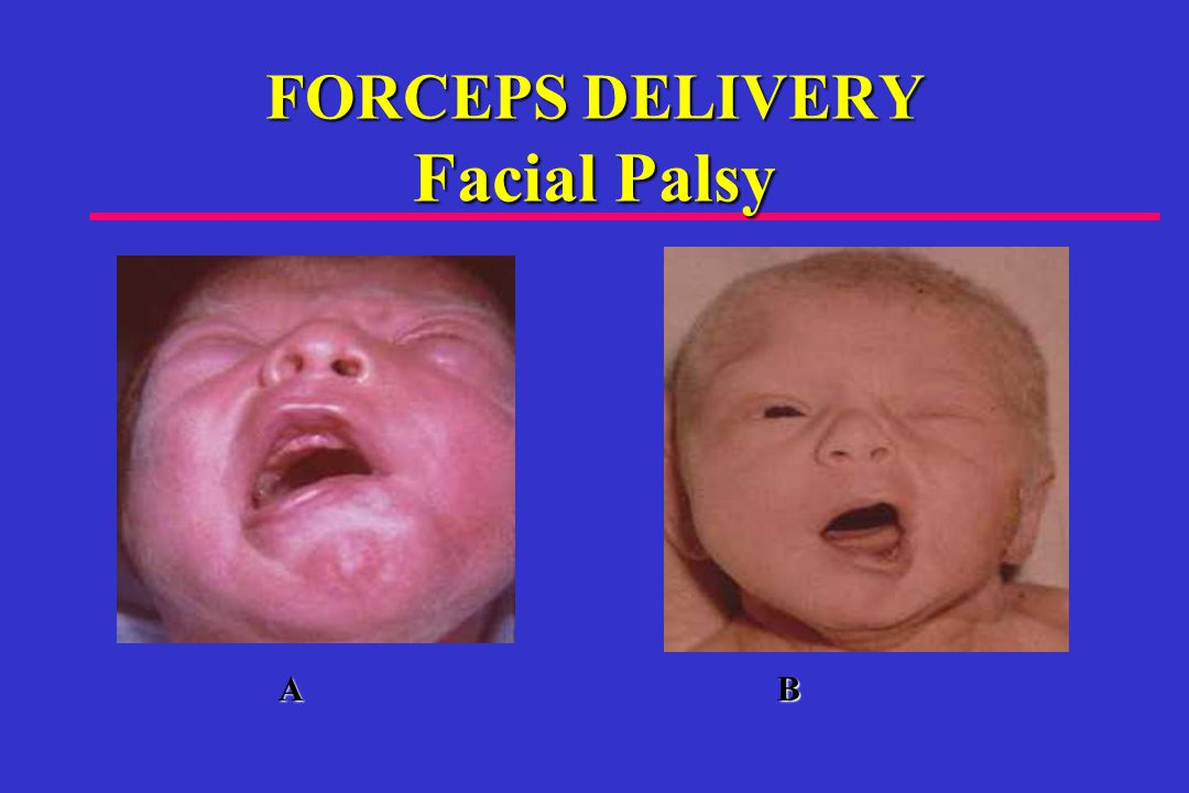 FORCEPS DELIVERY Facial Palsy A B