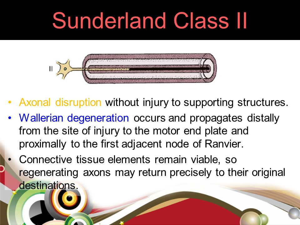 Sunderland Class II Axonal disruption without injury to supporting structures. Wallerian degeneration occurs and propagates distally from the site of