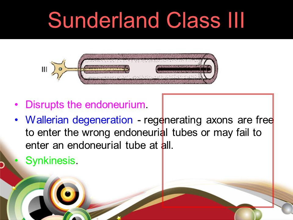 Sunderland Class III Disrupts the endoneurium. Wallerian degeneration - regenerating axons are free to enter the wrong endoneurial tubes or may fail t