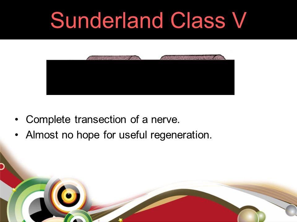 Sunderland Class V Complete transection of a nerve. Almost no hope for useful regeneration.