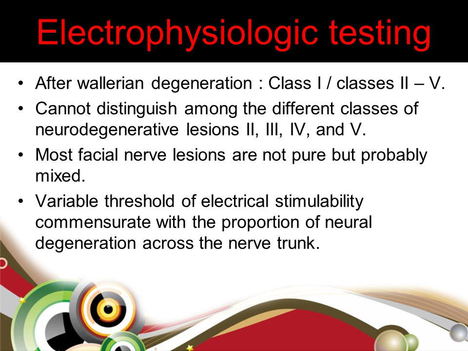 Electrophysiologic testing After wallerian degeneration : Class I / classes II – V. Cannot distinguish among the different classes of neurodegenerativ