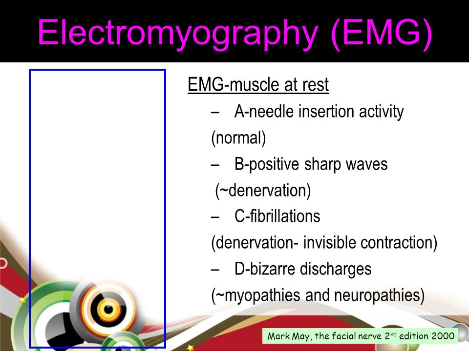 EMG-muscle at rest –A-needle insertion activity (normal) –B-positive sharp waves (~denervation) –C-fibrillations (denervation- invisible contraction)