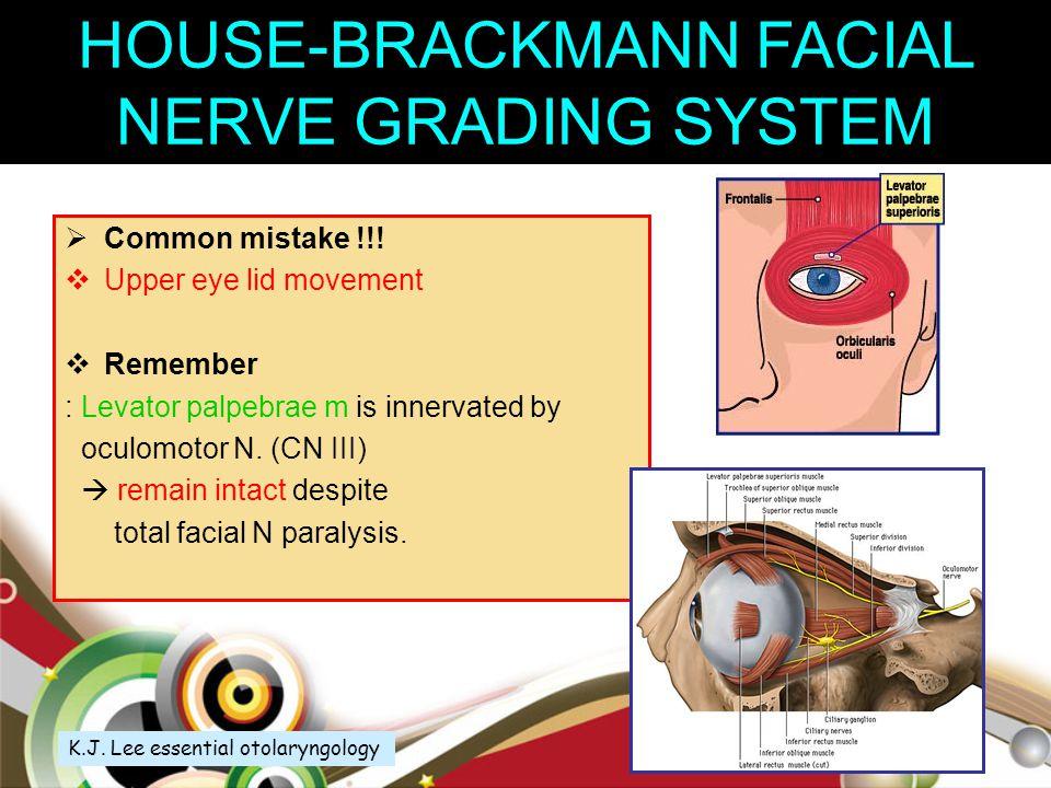 Sunderland Class VI MacKinnon and associates Mixed injury involving both neurapraxia and a variable degree of neurodegeneration.