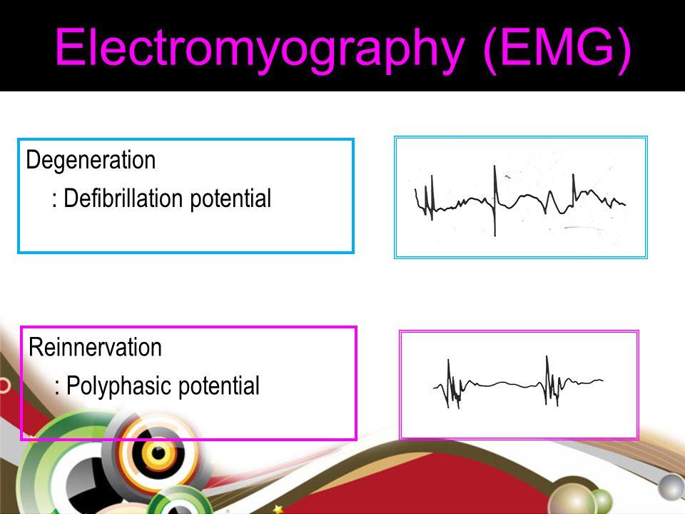 Degeneration : Defibrillation potential Reinnervation : Polyphasic potential Electromyography (EMG)