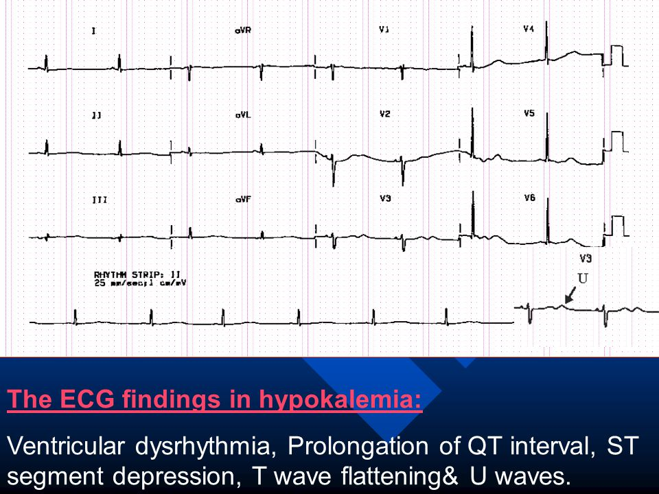 The ECG findings in hypokalemia: Ventricular dysrhythmia, Prolongation of QT interval, ST segment depression, T wave flattening& U waves.