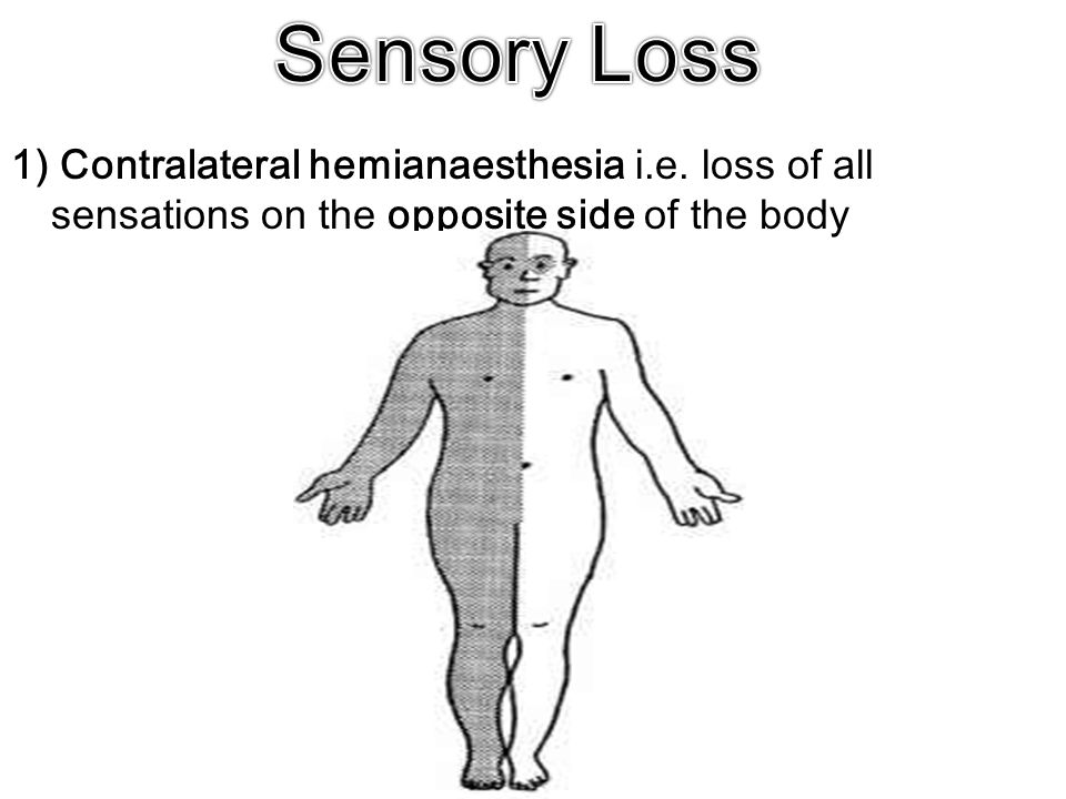 1) Contralateral hemianaesthesia i.e. loss of all sensations on the opposite side of the body