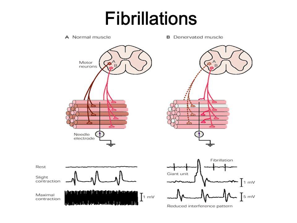 Fibrillations