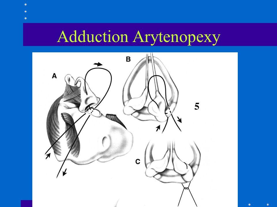 Adduction Arytenopexy