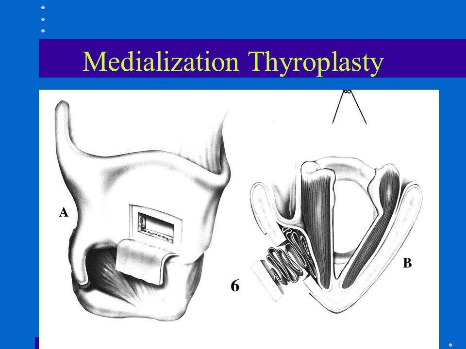 Medialization Thyroplasty