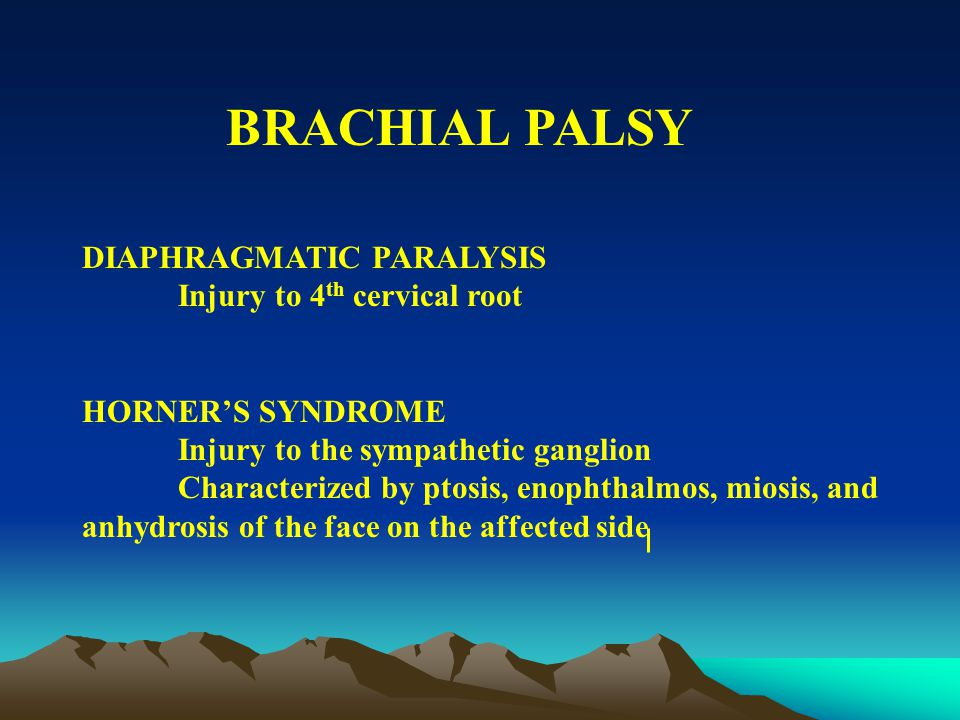 BRACHIAL PALSY ERB-DUCHENNE PARALYSIS Injury to the 5 th -6 th crevical root Absent Moro on the affected side KLUMPKE'S PARALYSIS Injury to the 7 th cervical and 8 th thoracic root Loss of sensory and motor fxn of hand and wrist