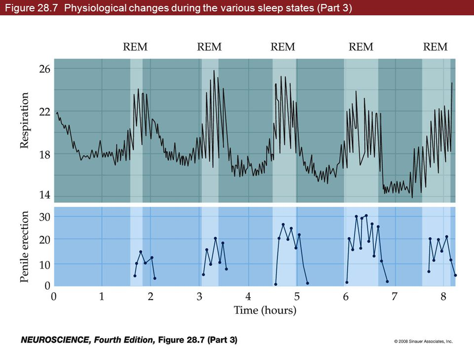 Figure 28.7 Physiological changes during the various sleep states (Part 3)