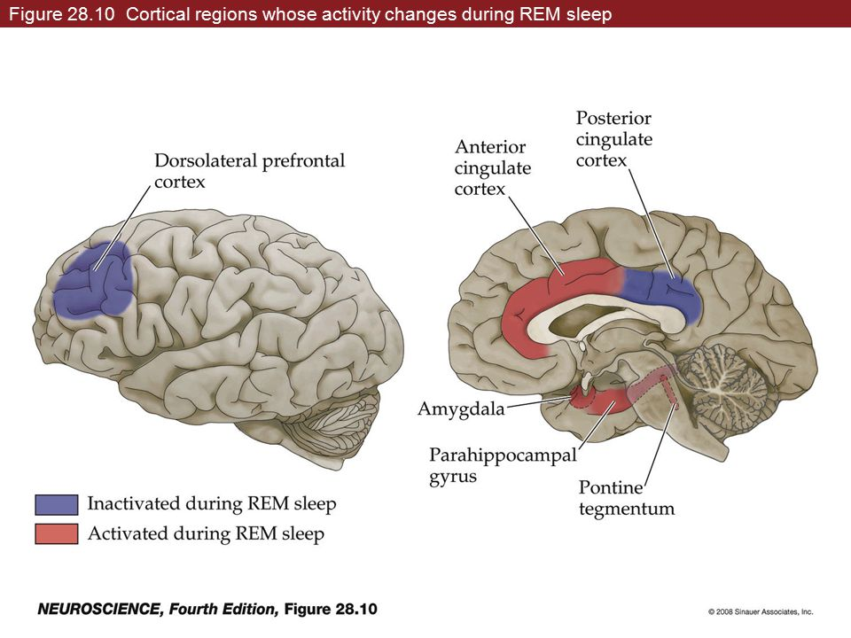 Figure 28.10 Cortical regions whose activity changes during REM sleep