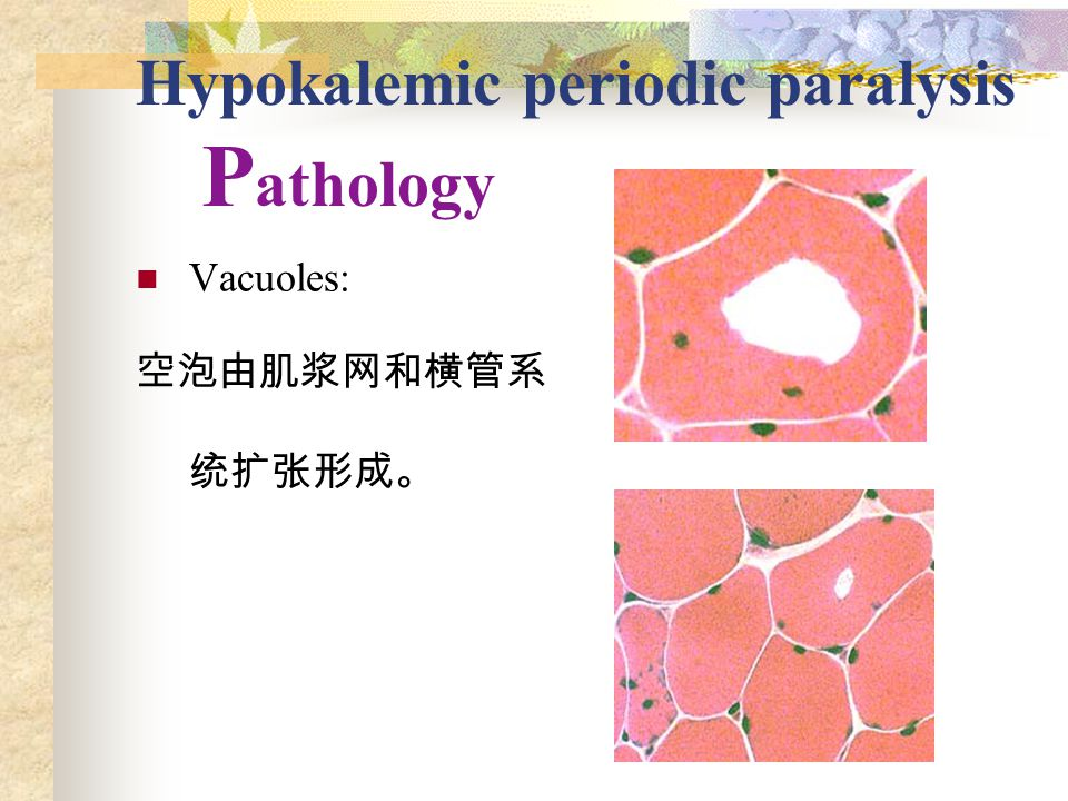 Hypokalemic periodic paralysis P athology Vacuoles: 空泡由肌浆网和横管系 统扩张形成。
