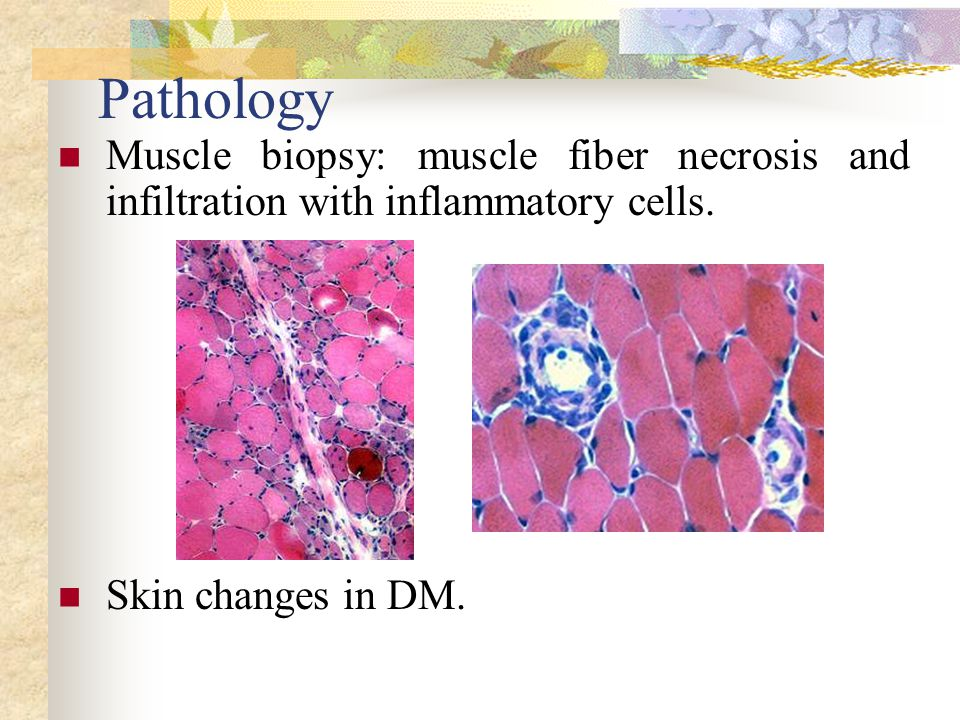 Pathology Muscle biopsy: muscle fiber necrosis and infiltration with inflammatory cells.