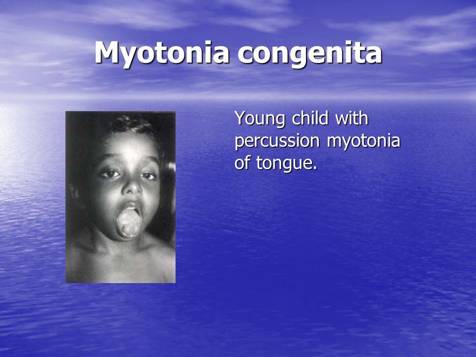 Myotonia congenita Young child with percussion myotonia of tongue.