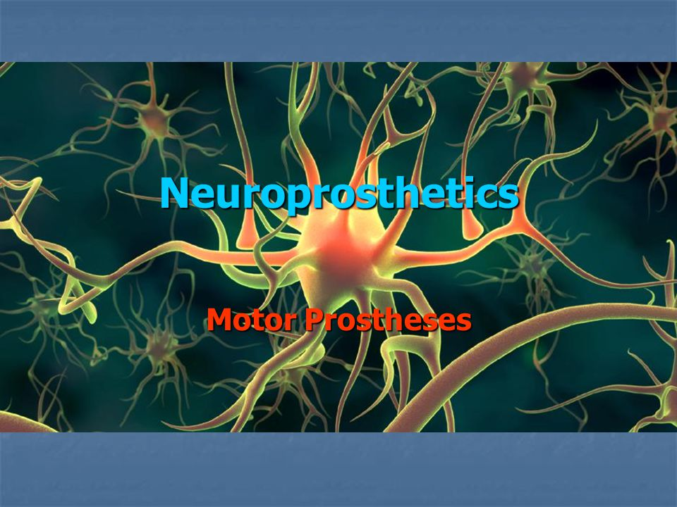 Background Damage to the Central Nervous System (CNS) can result in sensory loss, muscle contraction, cognitive problems, loss of motor control & biological function loss Damage to the Central Nervous System (CNS) can result in sensory loss, muscle contraction, cognitive problems, loss of motor control & biological function loss Treatments include – drugs, physical therapy, surgery & rehab (+ future – neural regeneration) Treatments include – drugs, physical therapy, surgery & rehab (+ future – neural regeneration) Also possible – Neural Motor Prosthesis Also possible – Neural Motor Prosthesis
