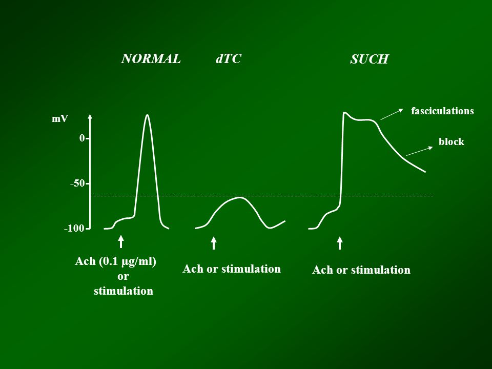 -100 -50 0 NORMAL dTC SUCH Ach (0.1 µg/ml) or stimulation Ach or stimulation mV block fasciculations Ach or stimulation