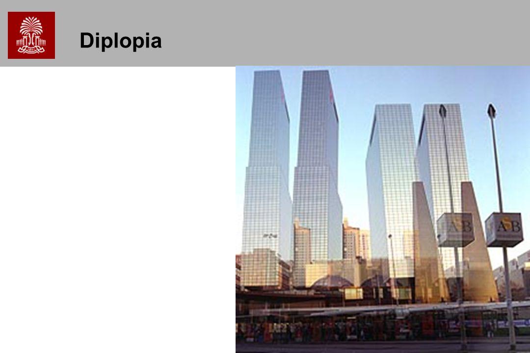 29 Diplopia