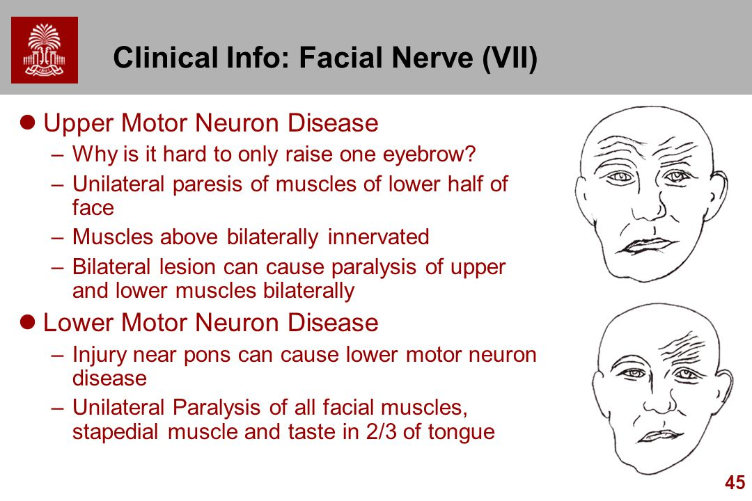 45 Clinical Info: Facial Nerve (VII) Upper Motor Neuron Disease –Why is it hard to only raise one eyebrow? –Unilateral paresis of muscles of lower hal