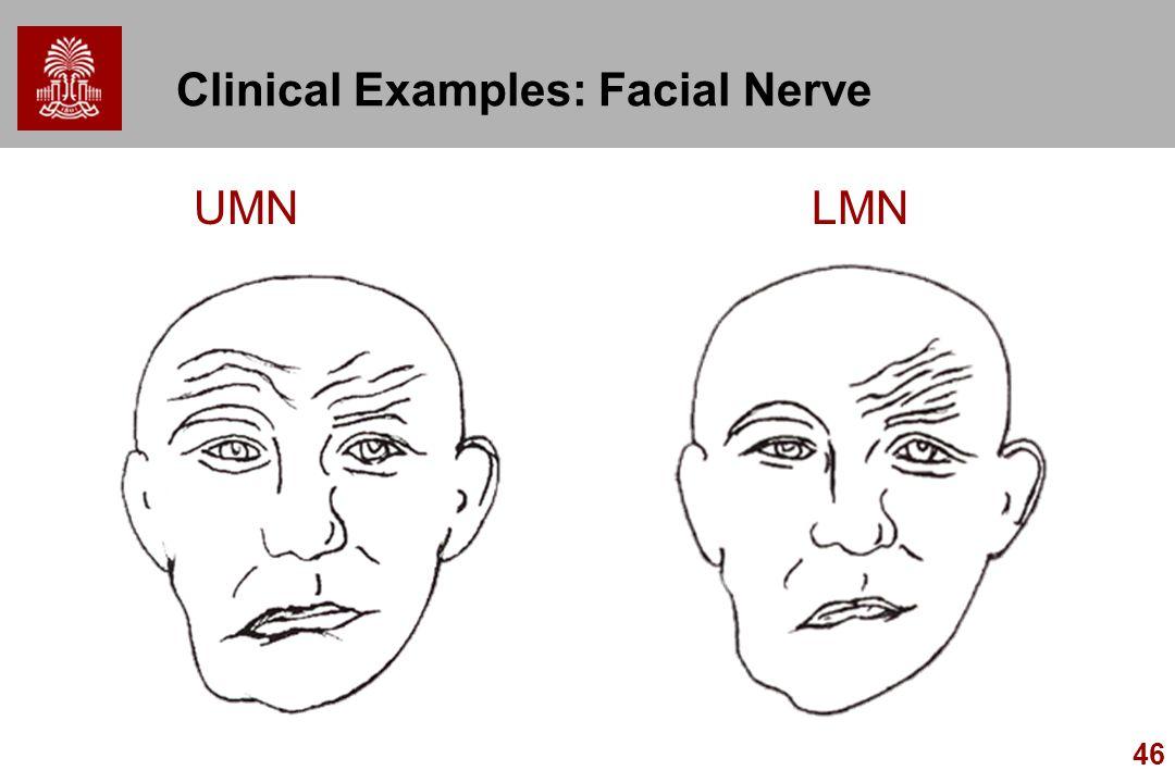 46 Clinical Examples: Facial Nerve UMNLMN