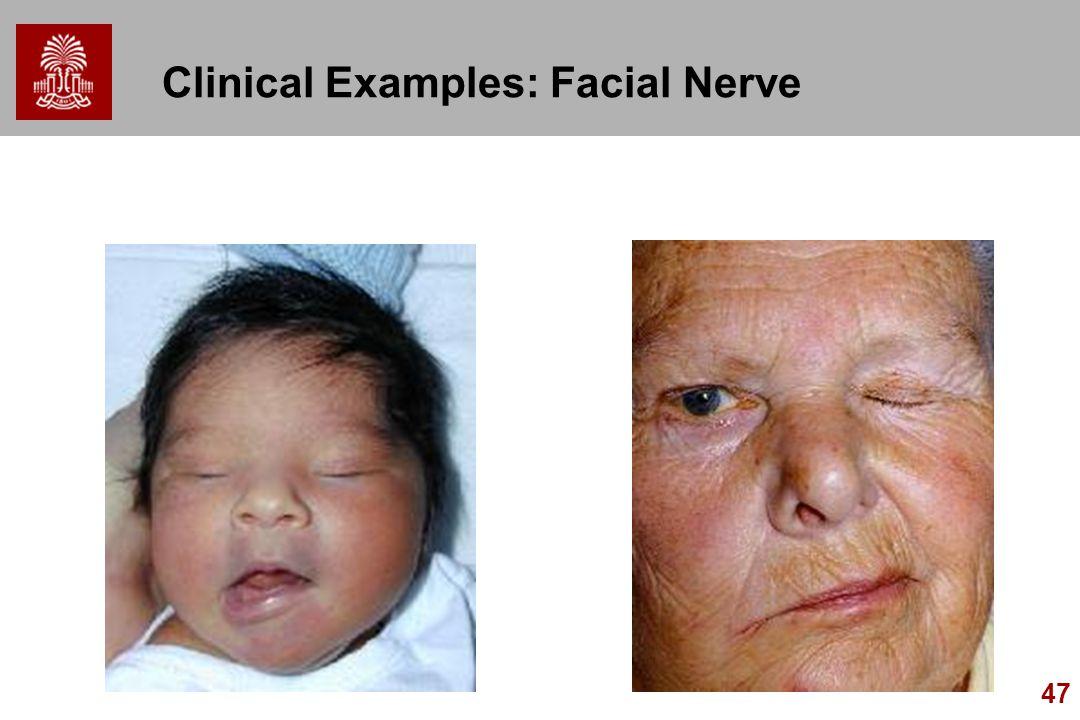 47 Clinical Examples: Facial Nerve