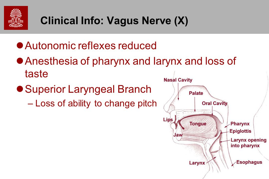 55 Clinical Info: Vagus Nerve (X) Autonomic reflexes reduced Anesthesia of pharynx and larynx and loss of taste Superior Laryngeal Branch –Loss of abi
