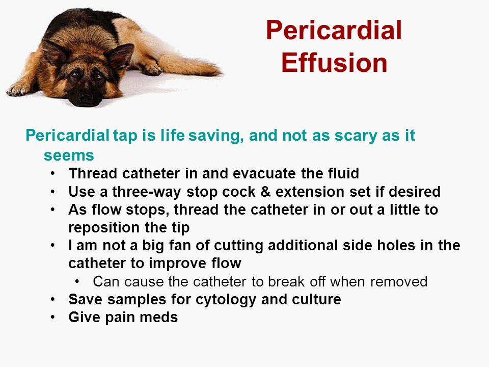 Pericardial Effusion Pericardial tap is life saving, and not as scary as it seems Thread catheter in and evacuate the fluid Use a three-way stop cock