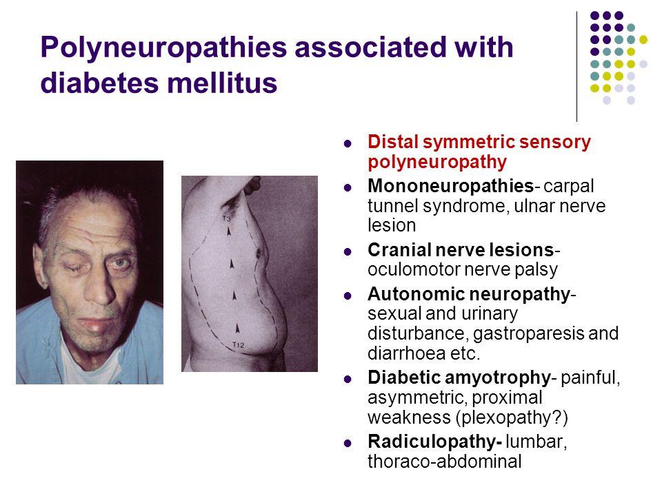 Polyneuropathies associated with diabetes mellitus Distal symmetric sensory polyneuropathy Mononeuropathies- carpal tunnel syndrome, ulnar nerve lesio