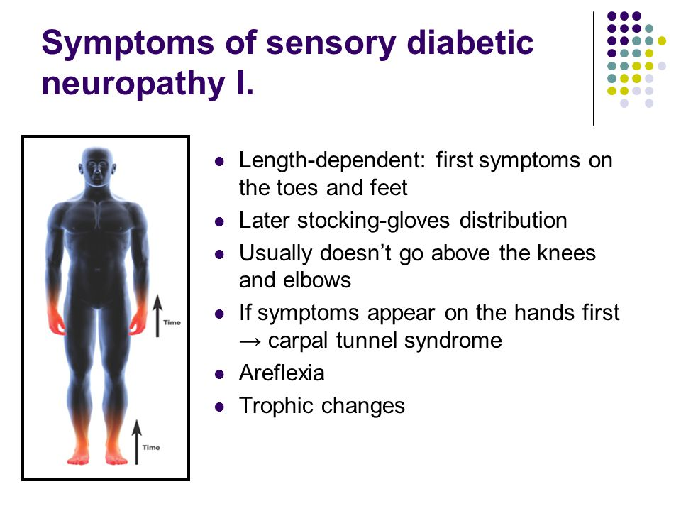 Symptoms of sensory diabetic neuropathy I. Length-dependent: first symptoms on the toes and feet Later stocking-gloves distribution Usually doesn't go