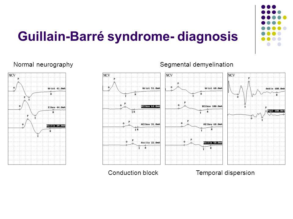 Guillain-Barré syndrome- diagnosis Normal neurographySegmental demyelination Conduction blockTemporal dispersion