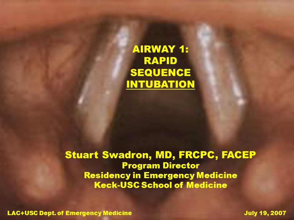 AIRWAY 1: RAPID SEQUENCE INTUBATION Stuart Swadron, MD, FRCPC, FACEP Program Director Residency in Emergency Medicine Keck-USC School of Medicine LAC+