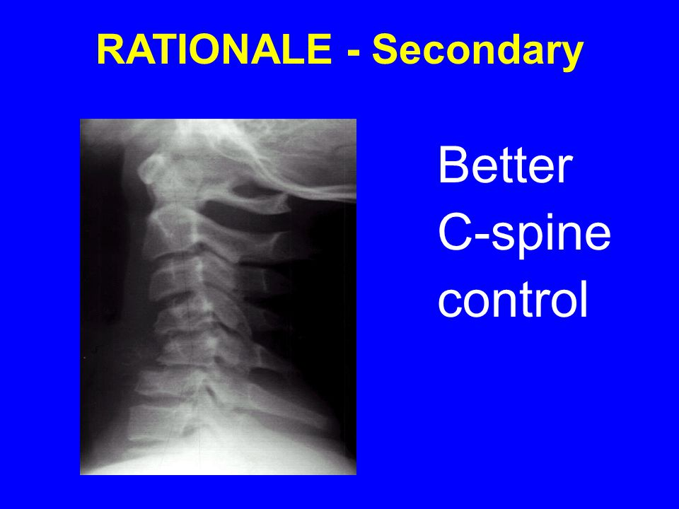 Better C-spine control RATIONALE - Secondary