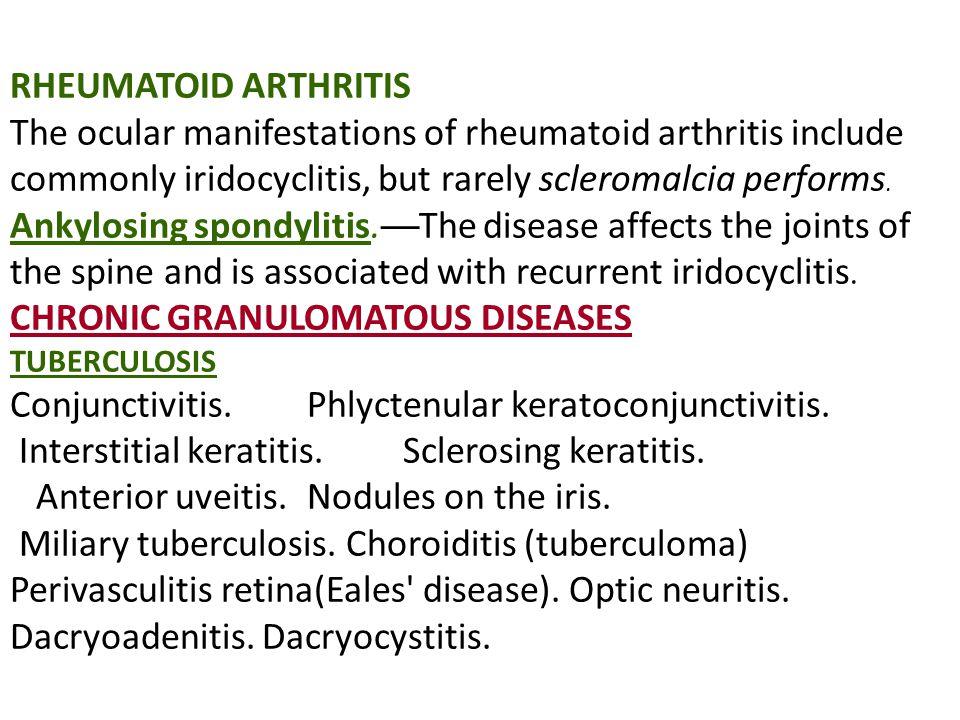 RHEUMATOID ARTHRITIS The ocular manifestations of rheumatoid arthritis include commonly iridocyclitis, but rarely scleromalcia performs. Ankylosing sp