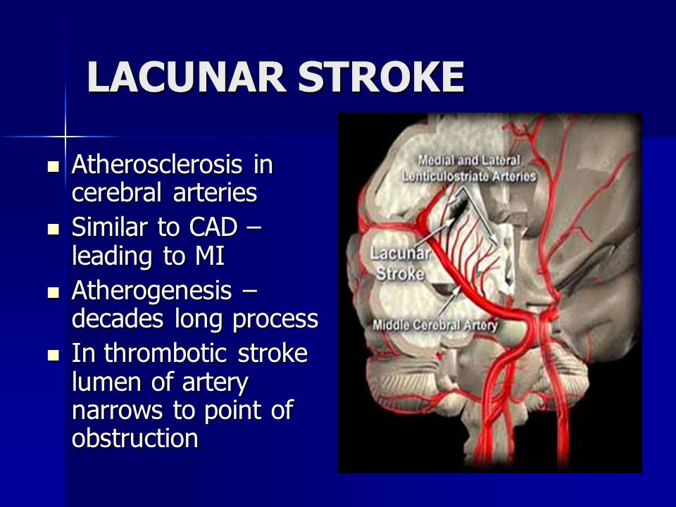 LACUNAR STROKE Atherosclerosis in cerebral arteries Atherosclerosis in cerebral arteries Similar to CAD – leading to MI Similar to CAD – leading to MI Atherogenesis – decades long process Atherogenesis – decades long process In thrombotic stroke lumen of artery narrows to point of obstruction In thrombotic stroke lumen of artery narrows to point of obstruction