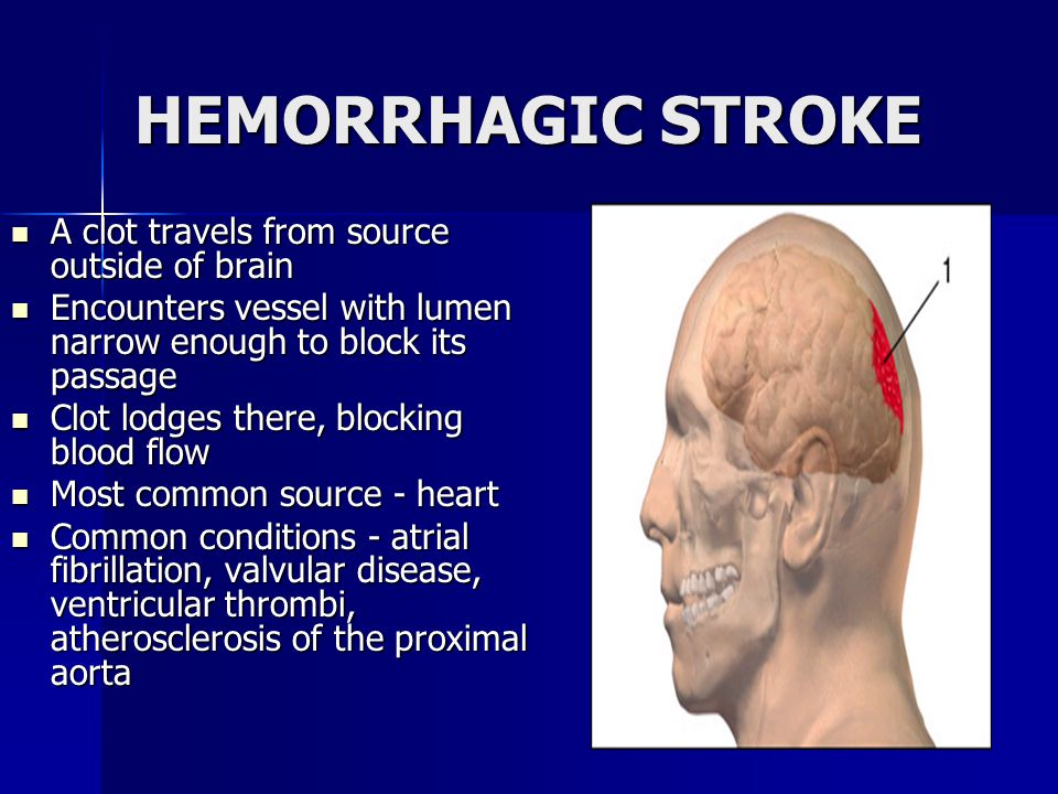 HEMORRHAGIC STROKE A clot travels from source outside of brain A clot travels from source outside of brain Encounters vessel with lumen narrow enough to block its passage Encounters vessel with lumen narrow enough to block its passage Clot lodges there, blocking blood flow Clot lodges there, blocking blood flow Most common source - heart Most common source - heart Common conditions - atrial fibrillation, valvular disease, ventricular thrombi, atherosclerosis of the proximal aorta Common conditions - atrial fibrillation, valvular disease, ventricular thrombi, atherosclerosis of the proximal aorta