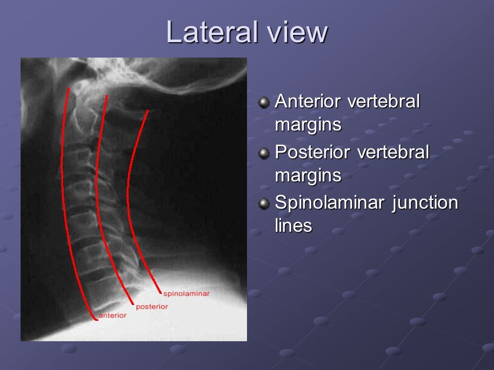 Lateral view Anterior vertebral margins Posterior vertebral margins Spinolaminar junction lines