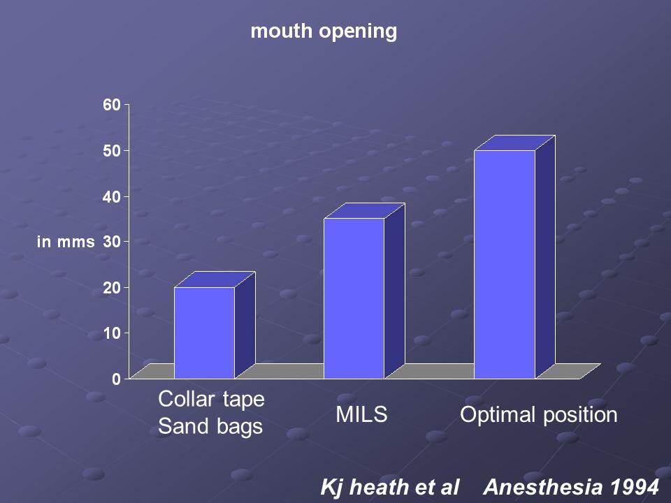 Collar tape Sand bags MILSOptimal position Kj heath et al Anesthesia 1994