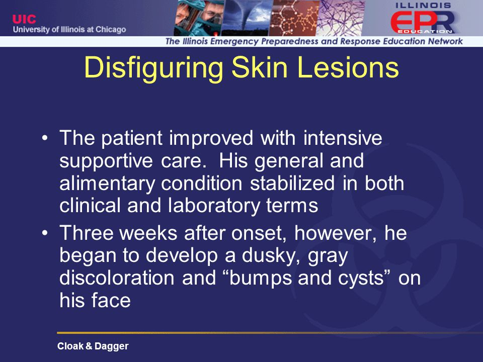 Cloak & Dagger Disfiguring Skin Lesions The patient improved with intensive supportive care.