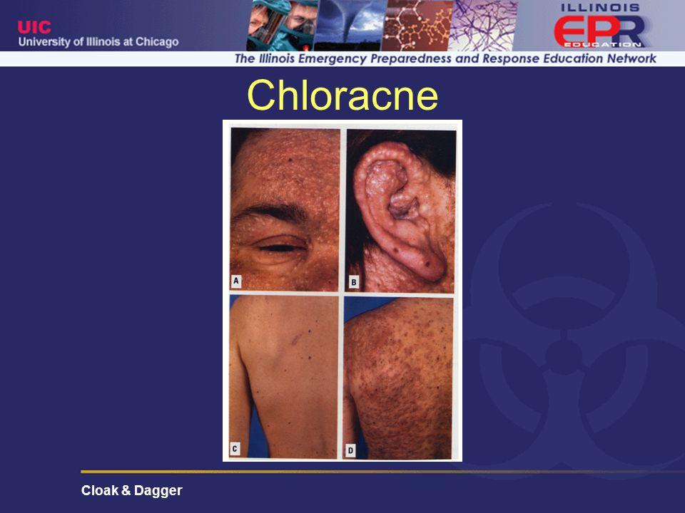 Cloak & Dagger Chloracne