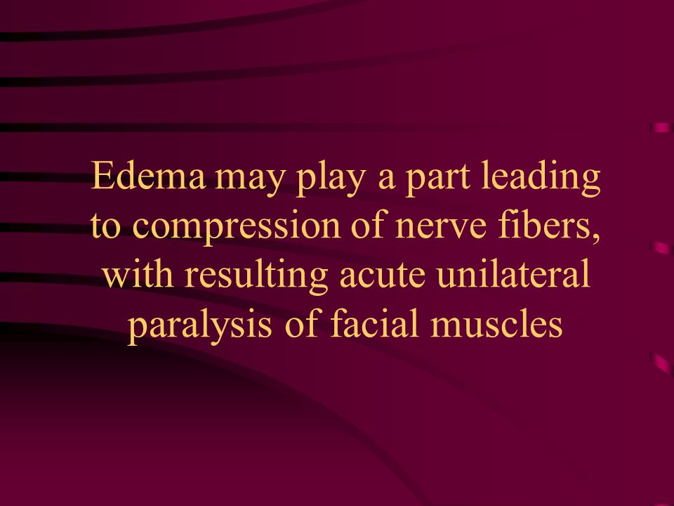 Edema may play a part leading to compression of nerve fibers, with resulting acute unilateral paralysis of facial muscles