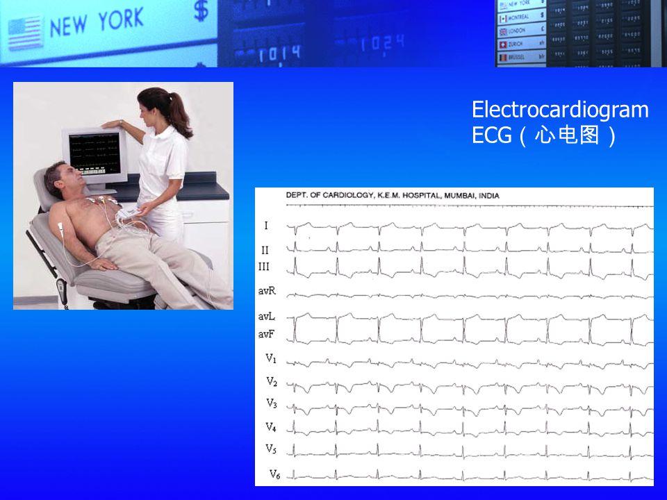 Electrocardiogram ECG (心电图)