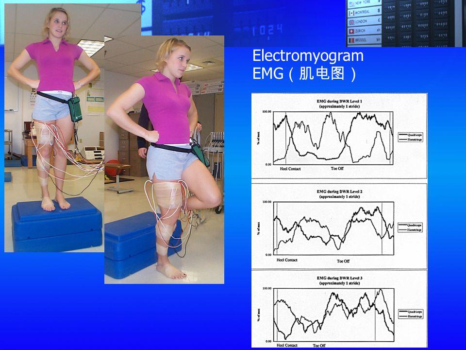 Electromyogram EMG (肌电图)