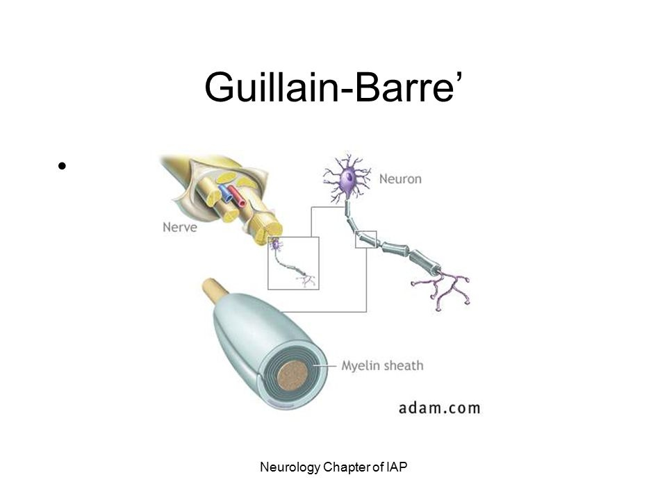 Neurology Chapter of IAP Guillain-Barre' Syndrome Post-infectious polyneuropathy; ascending polyneuropathic paralysis An acute, rapidly progressing and potentially fatal form of polyneuritis