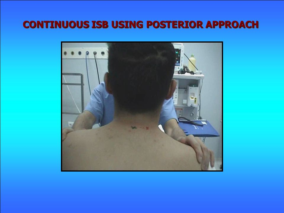 CONTINUOUS ISB USING POSTERIOR APPROACH