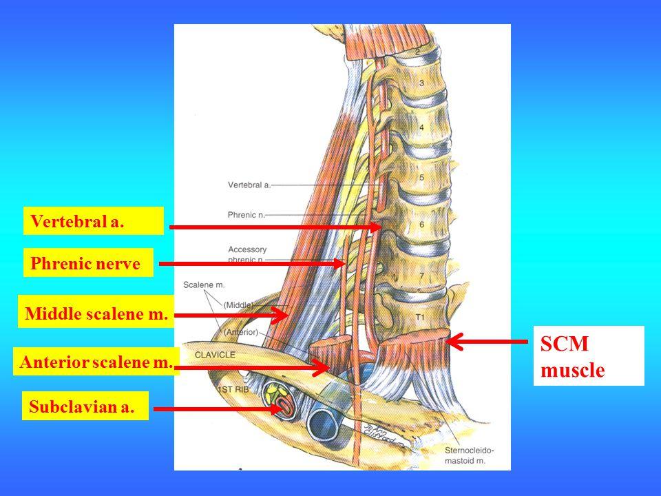 Vertebral a. Phrenic nerve SCM muscle Anterior scalene m. Middle scalene m. Subclavian a.