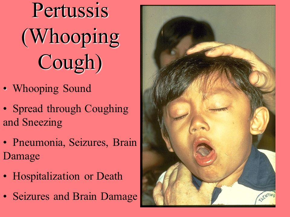 Pertussis (Whooping Cough) Whooping Sound Spread through Coughing and Sneezing Pneumonia, Seizures, Brain Damage Hospitalization or Death Seizures and