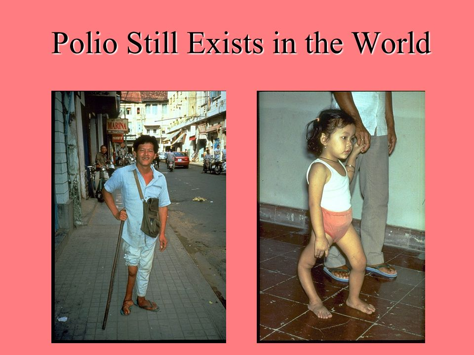 Polio Still Exists in the World