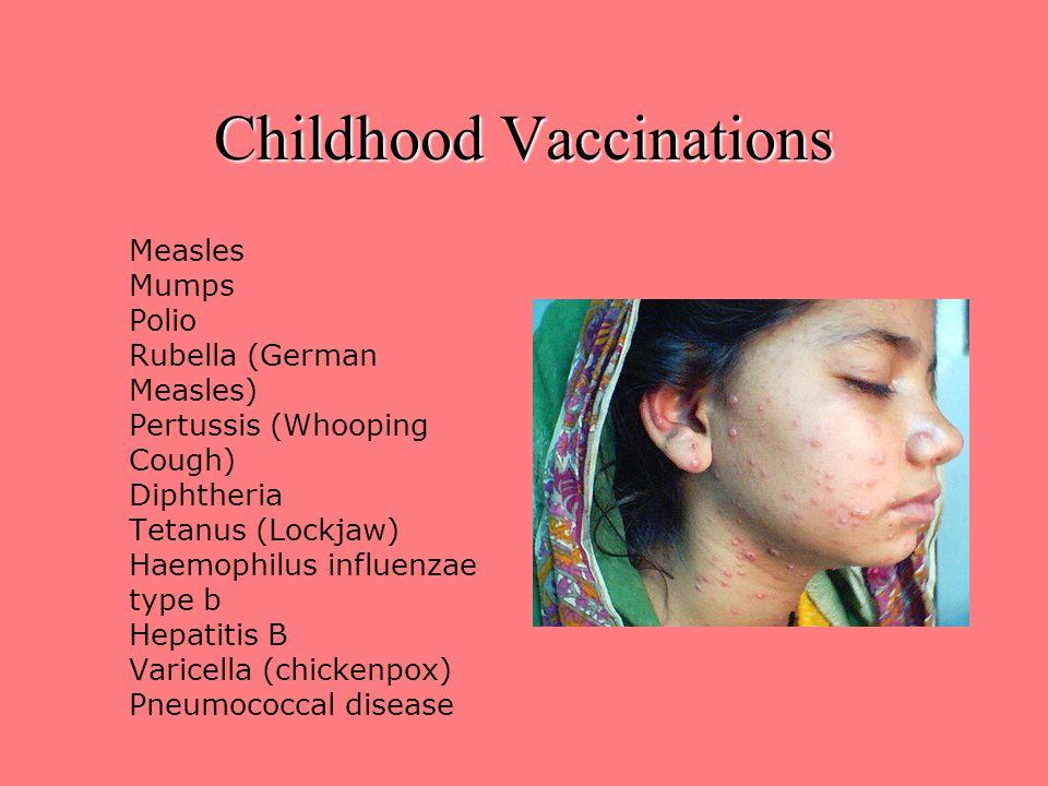 Childhood Vaccinations Measles Mumps Polio Rubella (German Measles) Pertussis (Whooping Cough) Diphtheria Tetanus (Lockjaw) Haemophilus influenzae type b Hepatitis B Varicella (chickenpox) Pneumococcal disease