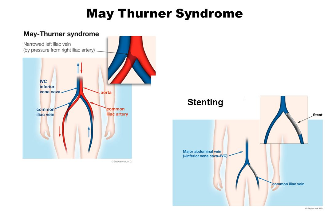 May Thurner Syndrome Stenting