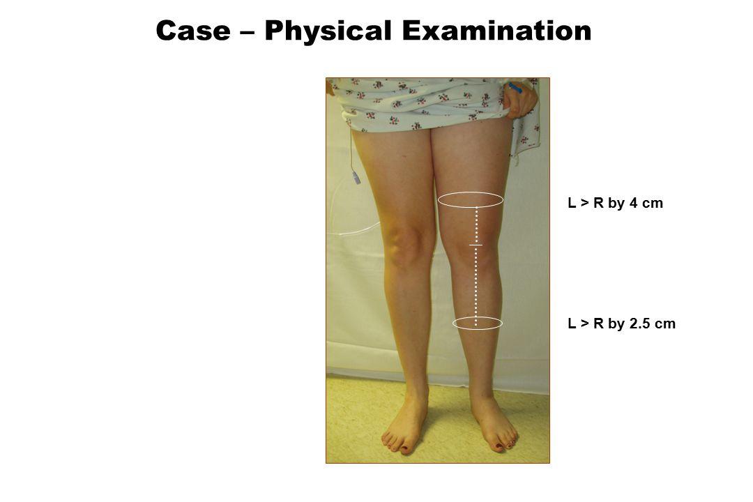 L > R by 4 cm L > R by 2.5 cm Case – Physical Examination